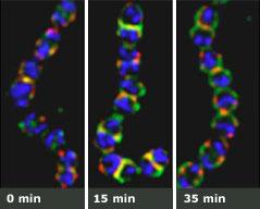 Stripped Strep Bacteria Click for Description