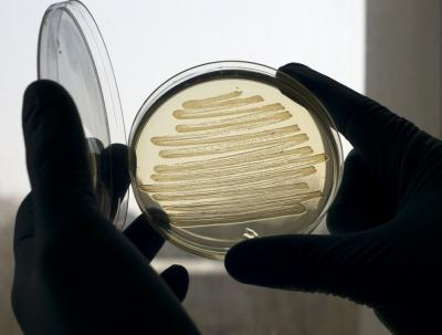 Synthetic Alkanes in a Petri Dish.  Diesel produced by special strains of E. coli bacteria, is almost identical to conventional diesel fuel and so does not need to be blended with petroleum products as is often required by biodiesels derived from plant oils.  Image Credit: Marian Littlejohn. Click image for the largest view.