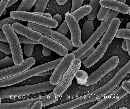 E coli Bacteria to Make Gasoline. Click image for the largest view.